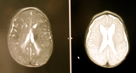 (L) Ellisa's Ventricles as of March 2012 (R) Ellisa's Ventricles Before Her VP Shunt