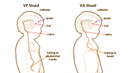How Shunts Work